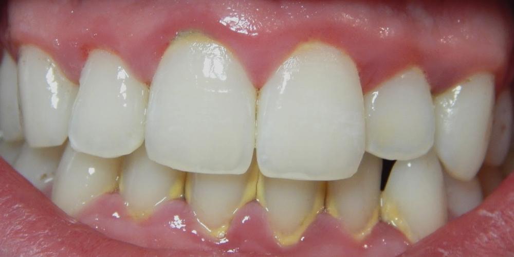 Результат лечения кариеса зубов