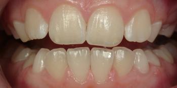 Гигиеническая чистка зубов фото после лечения