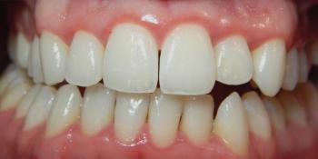 Результат лечения кариеса зубов фото после лечения
