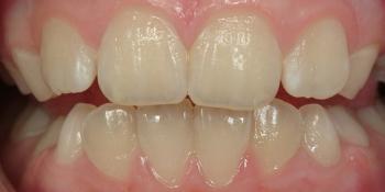 Гигиеническая чистка зубов фото до лечения