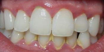 Результат лечения кариеса зубов фото до лечения